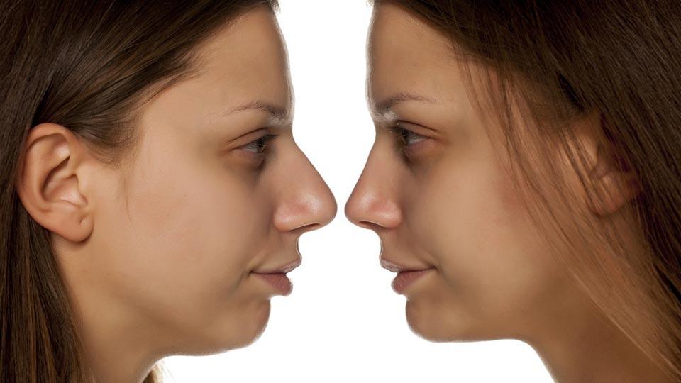 rinofiller prima-dopo i risultati del trattamento
